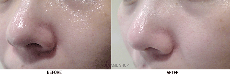 By Ecom Heartleaf Purifying Mask Review - Before & After