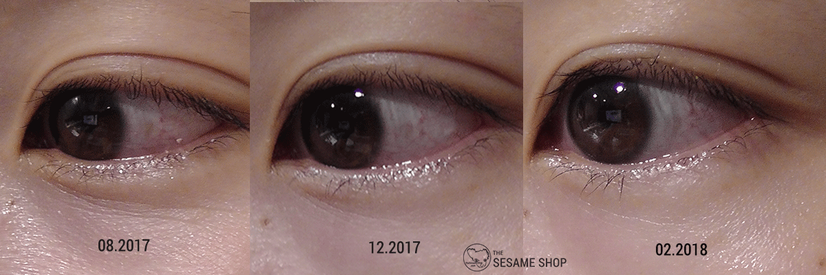 How I got rid of under eye fine lines